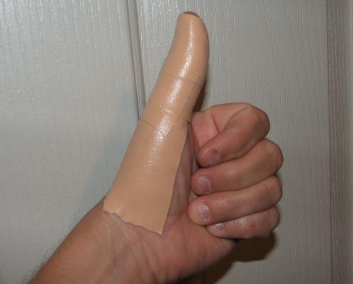 Salabrasion Tattoo removel