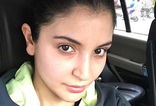 anushka-sharma-without-makeup-14