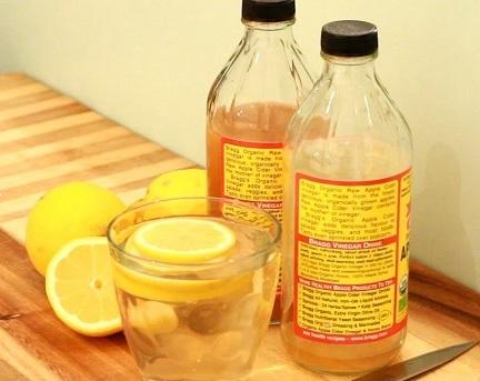 ACV and Lemon to treat dandruff