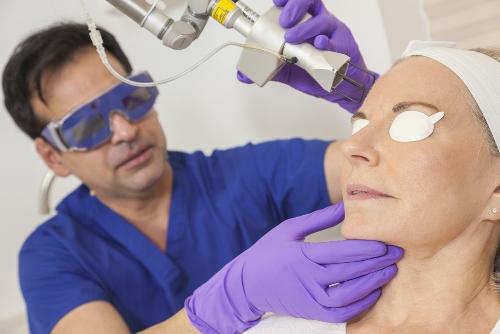 Laser Treatment for Dark Circles