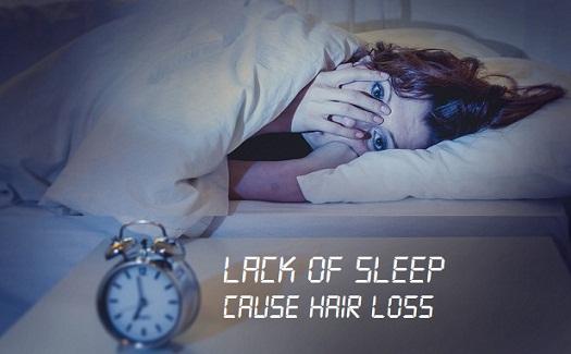 lack-of-sleep-hair-loss