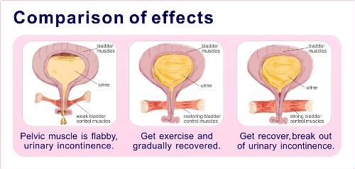 kegel exercise 1
