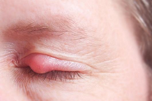 Natural Remedies To Get Rid Of Eye Stye