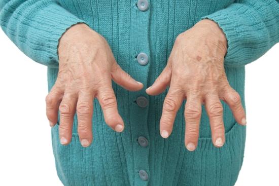 Rheumatoid Arthritis Symptoms And Causes