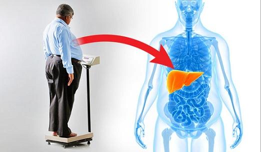 Non Alcoholic Fatty liver