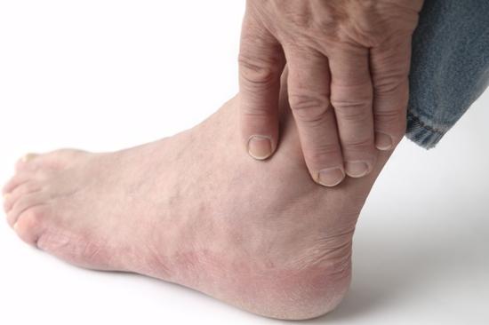 Symptoms of Gout