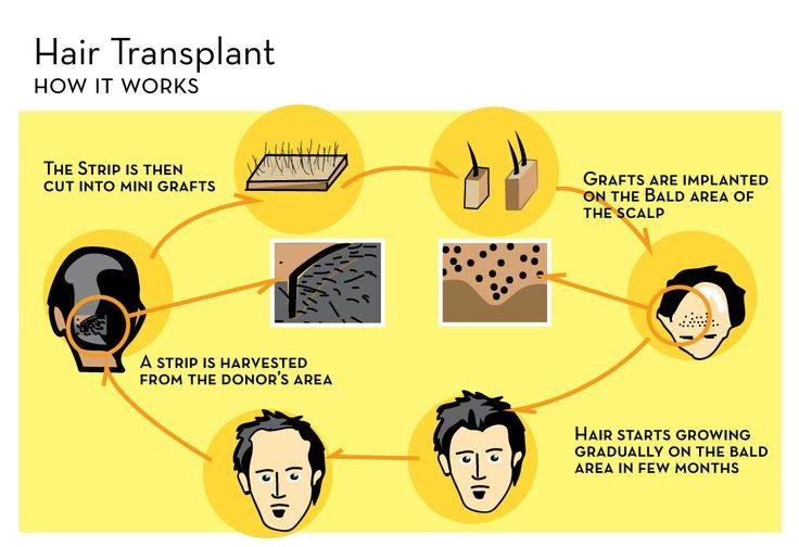 Top 15 Clinics For Hair Transplant In Delhi