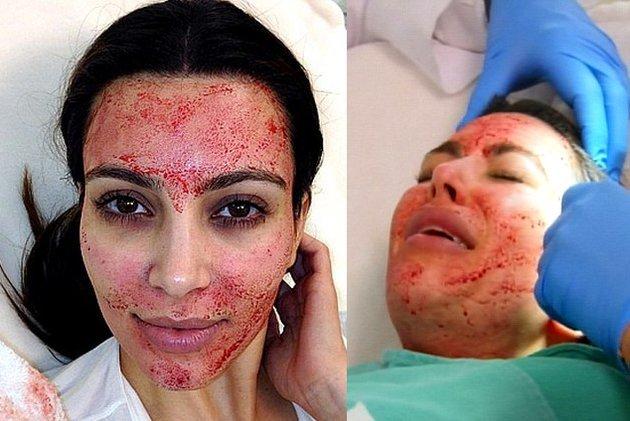 10 of the Weirdest Beauty Treatments