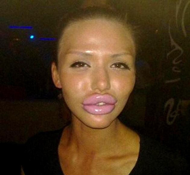 Should I Get Lip Fillers?
